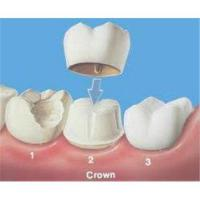 China Biocompatible Transition Dental Crowns And Bridges With Maximum 4 Unit Pontic Span wholesale