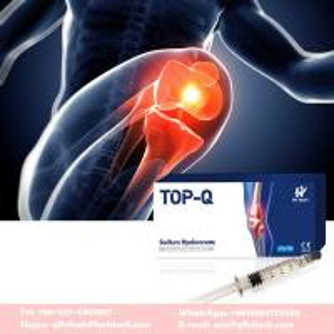 China 2ml Non Cross-linked sodium hyaluronate injections for Osteoarthritis rheumatoid arthritis on sale
