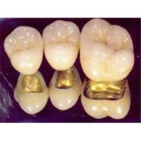 China High Intensity Porcelain Fused To Metal With Natural Anatomy For Dental Cosmetic wholesale