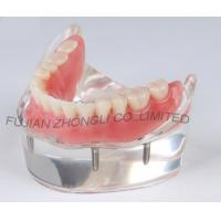 Buy cheap dental 4 impants hybrid denture combination lower arch model product