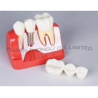Buy cheap Dental Implants 3 Units Bridge 2 Crowns Reconstruction product