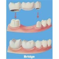 Quality High Intensity Dentistry Crowns And Bridges With Porcelain For Brightness Cosmetic Teeth for sale