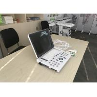 China 310mm Scanning Depth Professional Liver Kidney Abdominal Testing Ultrasound Scanner Equipment wholesale