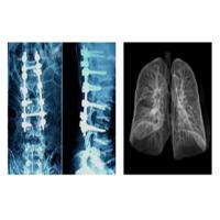 China Sharp Radiographic Medical X Ray Films , Mri Dr Ct Digital Dry Imaging Film wholesale