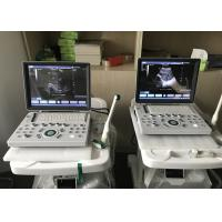 "China 15""LED B/W Portable Digital Ultrasonic Diagnostic System with 15"" LED Monitor Display wholesale"