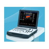China Laptop Portable Ultrasound Equipment , Ultrasound Imaging Machine With 3D Image on sale