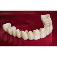 China Strength And Aesthetics Dental Zirconia Crowns For Elimination of Dark Gingival Lines wholesale