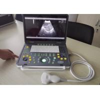 "China 15"" LED USB Laptop Digital Ultrasound Machine With Multi-frequency Probes wholesale"