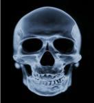 China Medical Dry Imaging Film Scan Film , CT Laser Agfa Fuji X-Ray Film wholesale