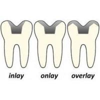 China High intensity Color Stability Dental Inlays And Onlays With Marginal Seal For Teeth wholesale