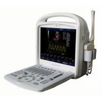 China 15inch Full-digital Color Doppler Ultrasound System Portable With 3D / 4D Software wholesale